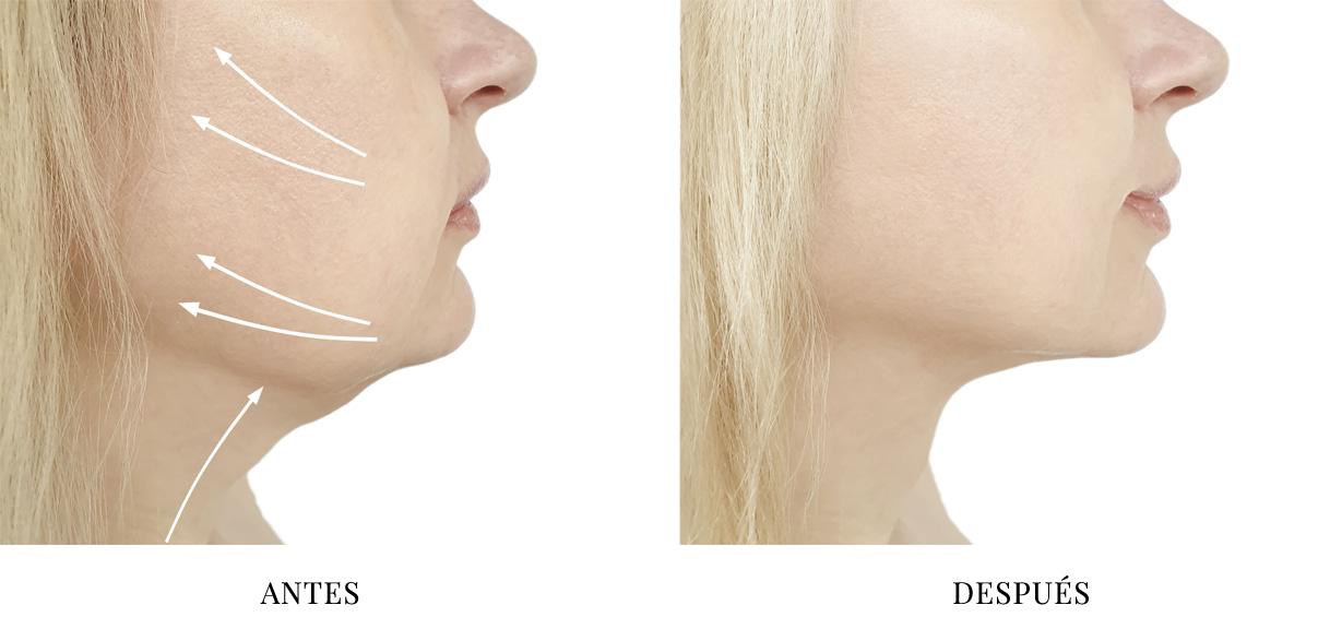 Sección Óvalo Facial Maestro Mujer 3