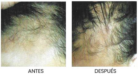 Implantes Capilares en Oviedo