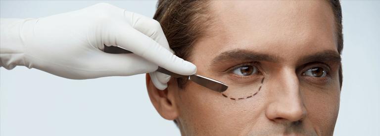 Medicina estetica masculina1