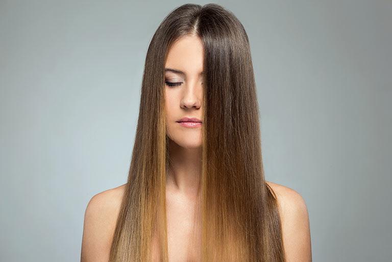 alopecia femenina