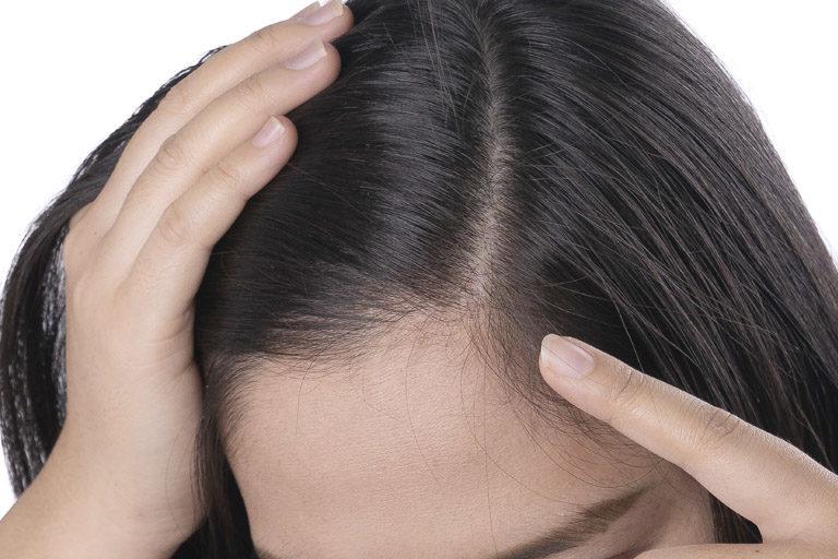 Consejos para el cuidado del cuero cabelludo