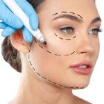 1lifting facial sin cirugía. Hilos tensores faciales Oviedo