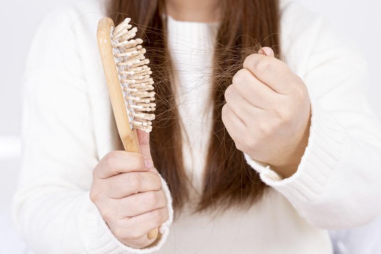 Caída del cabello en la mujer. Medicina Capilar en Oviedo