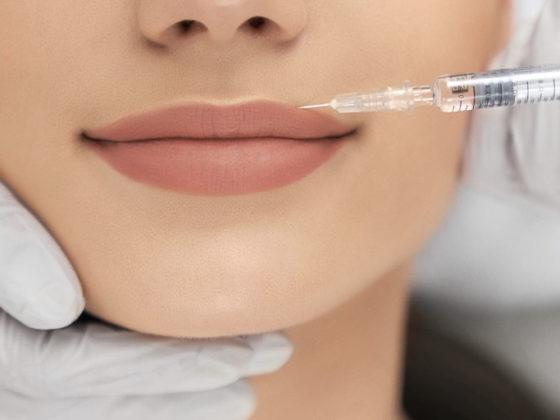 Tratamiento de código de barras de los labios. Ácido hialurónico en Asturias